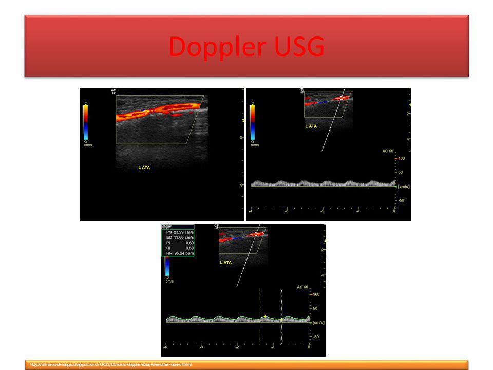 Doppler USG http://ultrasound-images.blogspot.com.tr/2012/10/colour-doppler-study-of-another-case-of.html.