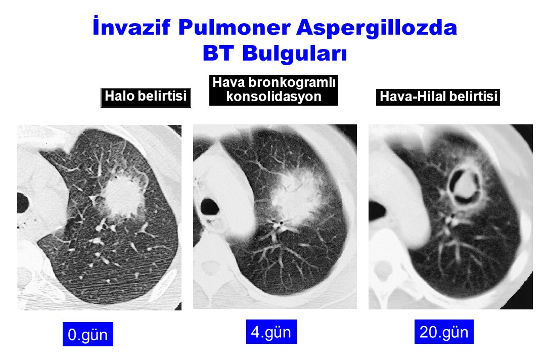 İnvazif Pulmoner Aspergillozda BT Bulguları
