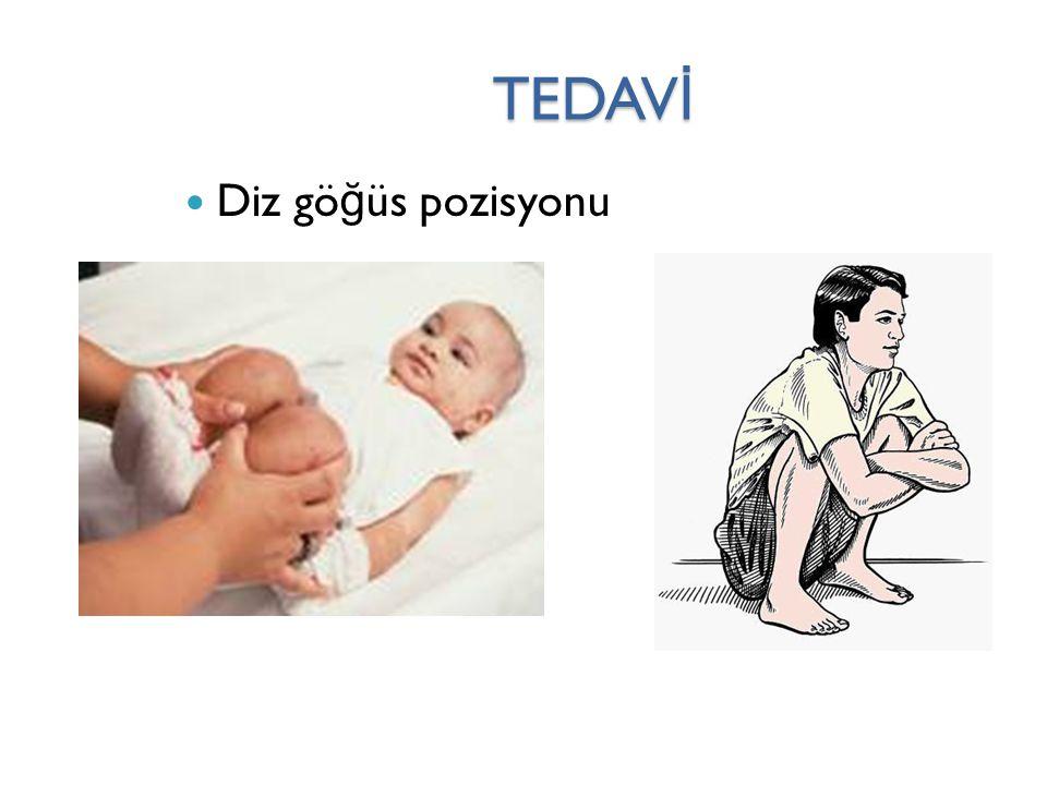 TEDAVİ Diz göğüs pozisyonu