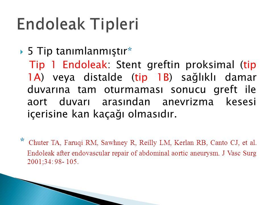 Endoleak Tipleri 5 Tip tanımlanmıştır*
