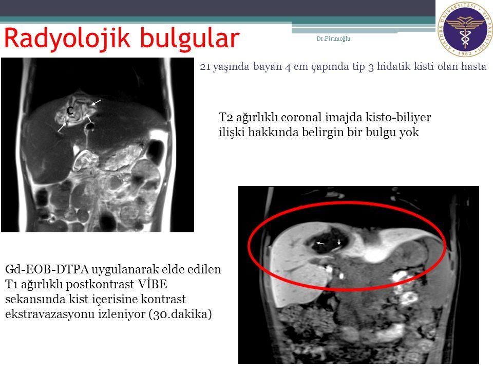Radyolojik bulgular Dr.Pirimoğlu. 21 yaşında bayan 4 cm çapında tip 3 hidatik kisti olan hasta.