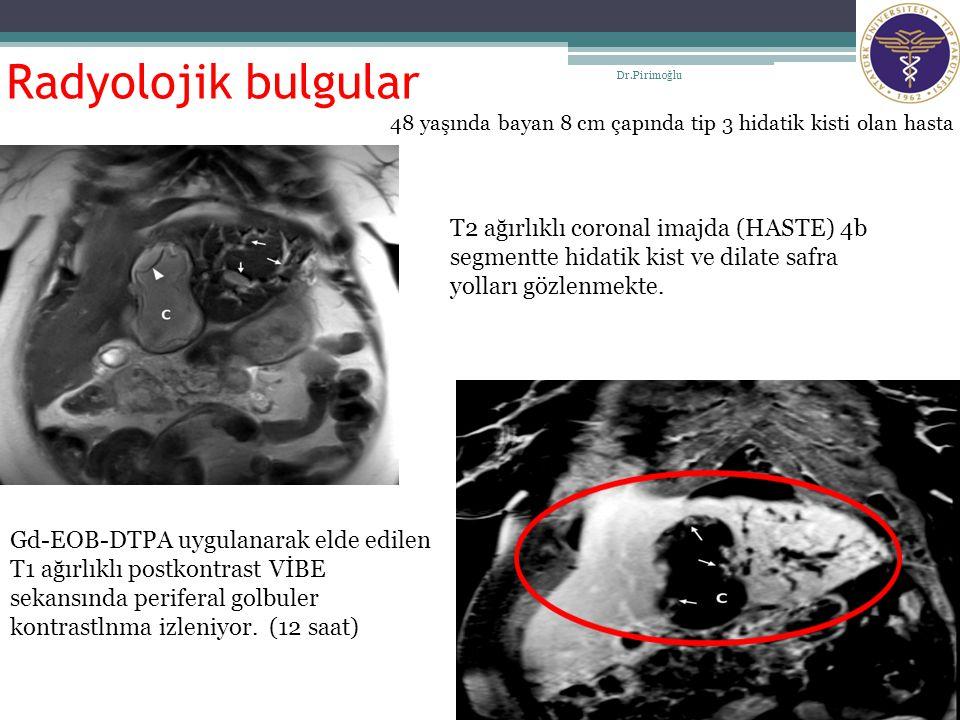 Radyolojik bulgular Dr.Pirimoğlu. 48 yaşında bayan 8 cm çapında tip 3 hidatik kisti olan hasta.