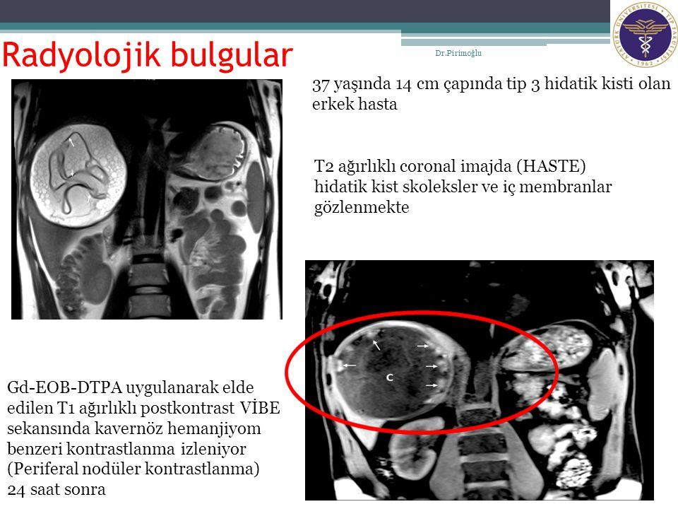 Radyolojik bulgular Dr.Pirimoğlu. 37 yaşında 14 cm çapında tip 3 hidatik kisti olan erkek hasta.