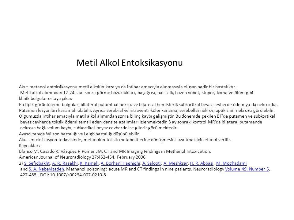 Metil Alkol Entoksikasyonu