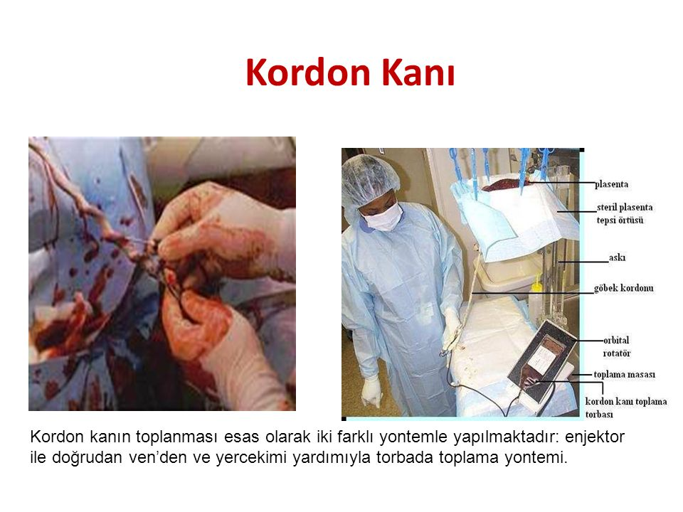 Kordon Kanı Kordon kanın toplanması esas olarak iki farklı yontemle yapılmaktadır: enjektor.