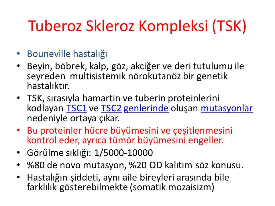Tuberoz Skleroz Kompleksi (TSK)