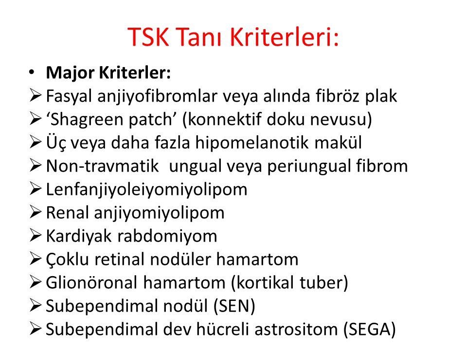 TSK Tanı Kriterleri: Major Kriterler: