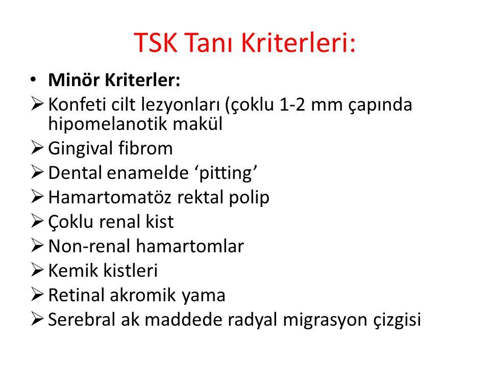 TSK Tanı Kriterleri: Minör Kriterler:
