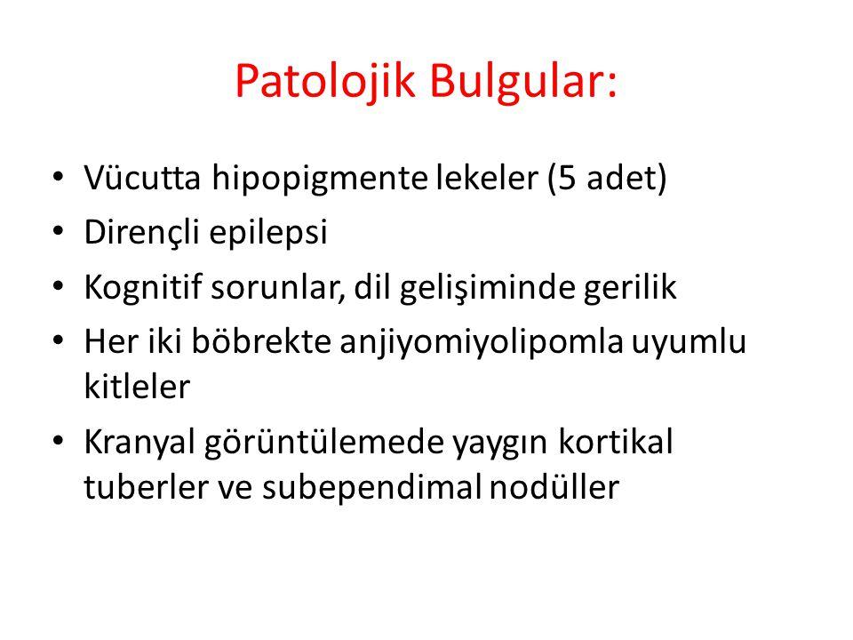Patolojik Bulgular: Vücutta hipopigmente lekeler (5 adet)