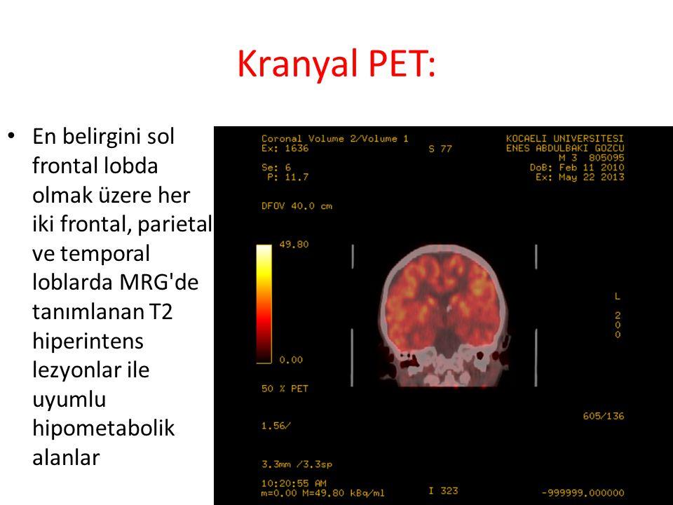 Kranyal PET: