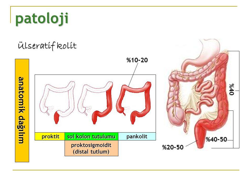 patoloji Ülseratif kolit anatomik dağılım %10-20 %40 %40-50 %20-50