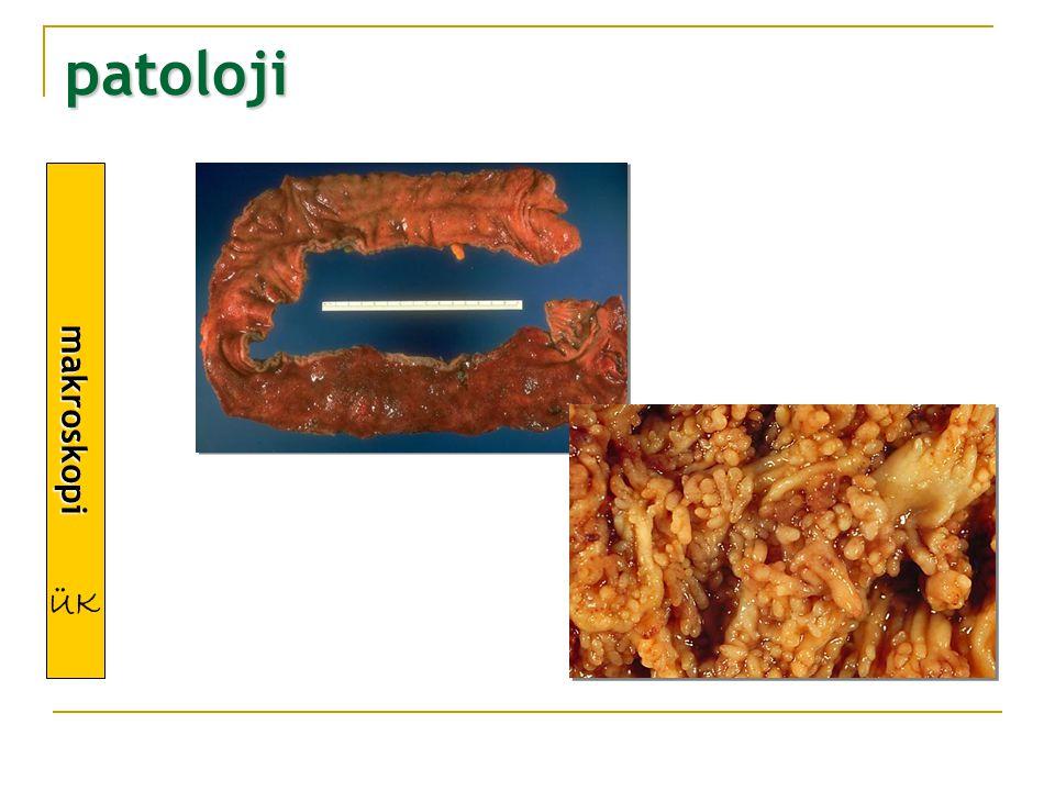 patoloji makroskopi ÜK