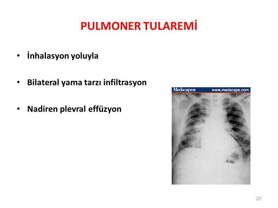PULMONER TULAREMİ İnhalasyon yoluyla Bilateral yama tarzı infiltrasyon