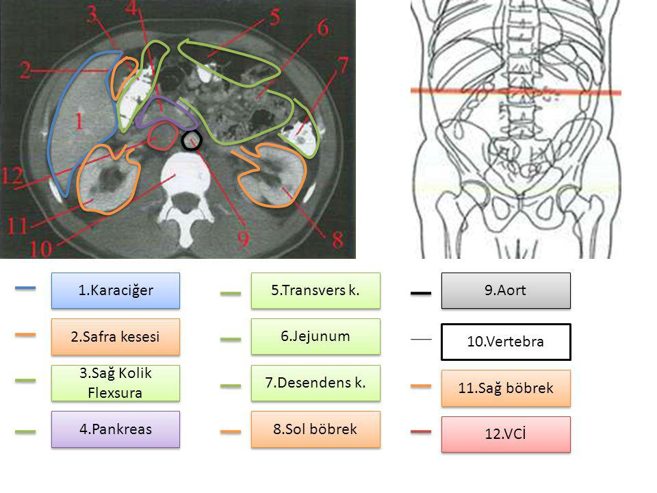 1.Karaciğer 5.Transvers k. 9.Aort. 2.Safra kesesi. 6.Jejunum. 10.Vertebra. 3.Sağ Kolik Flexsura.