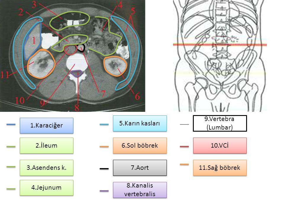 5.Karın kasları 9.Vertebra (Lumbar) 1.Karaciğer. 2.İleum. 6.Sol böbrek. 10.VCİ. 3.Asendens k. 7.Aort.