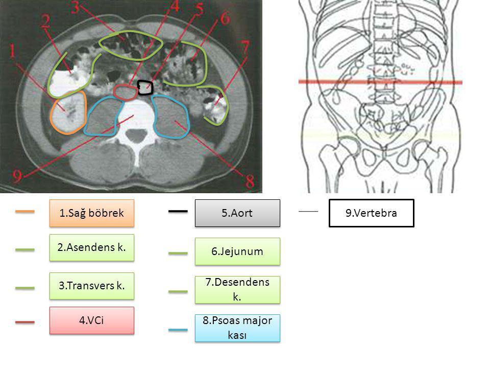 1.Sağ böbrek 5.Aort. 9.Vertebra. 2.Asendens k. 6.Jejunum. 3.Transvers k. 7.Desendens k. 4.VCi.