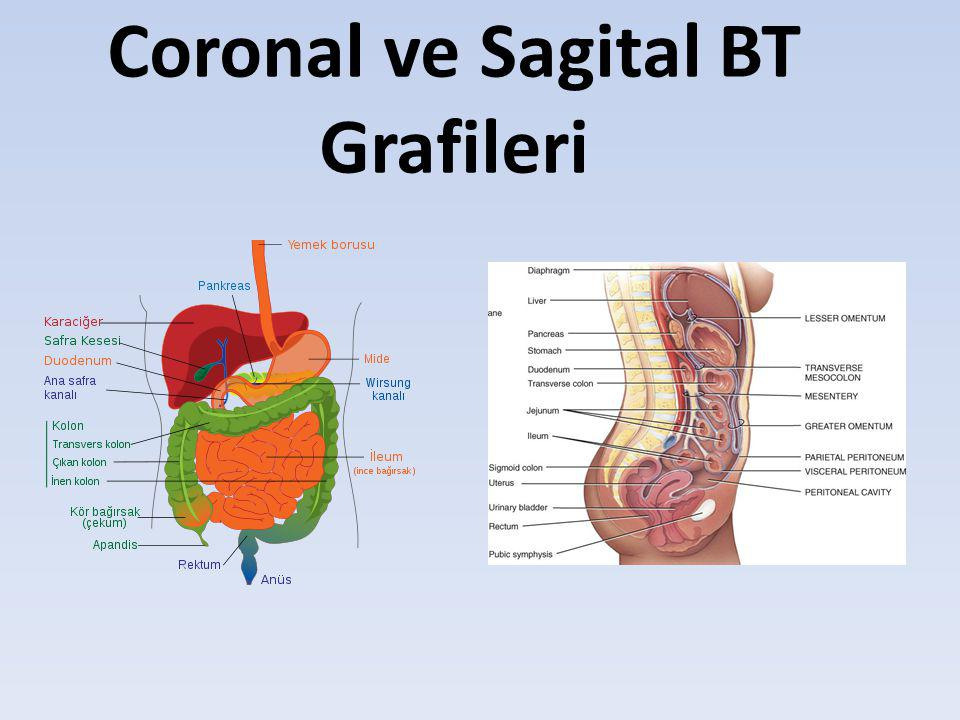 Coronal ve Sagital BT Grafileri