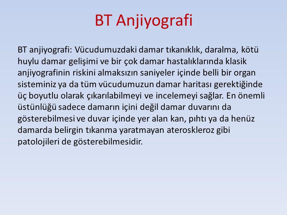 BT Anjiyografi