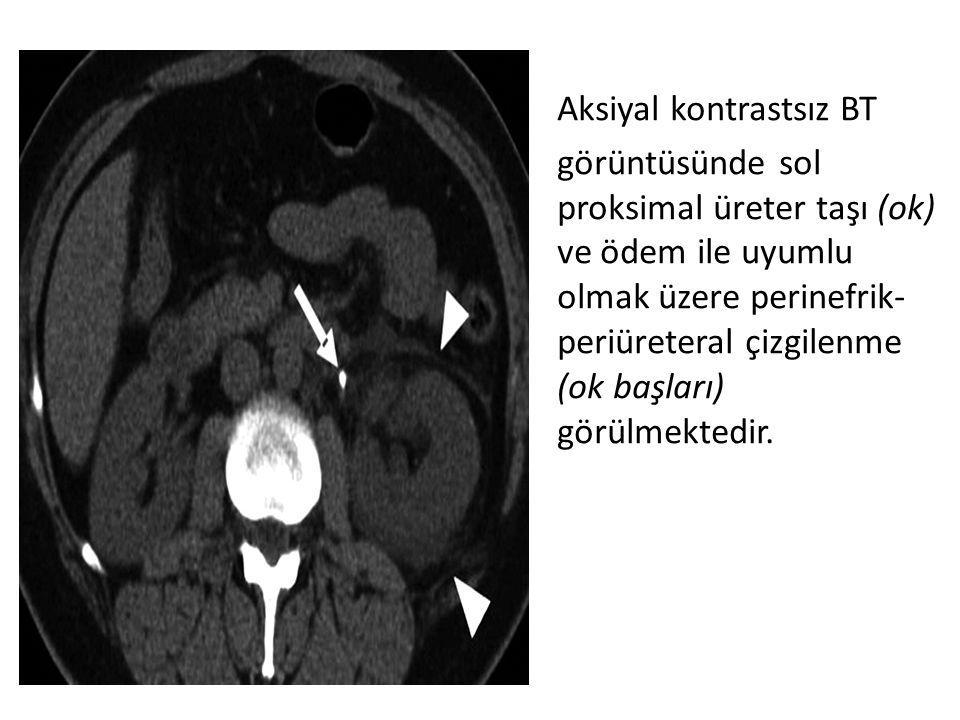 Aksiyal kontrastsız BT görüntüsünde sol proksimal üreter taşı (ok) ve ödem ile uyumlu olmak üzere perinefrik-periüreteral çizgilenme (ok başları) görülmektedir.