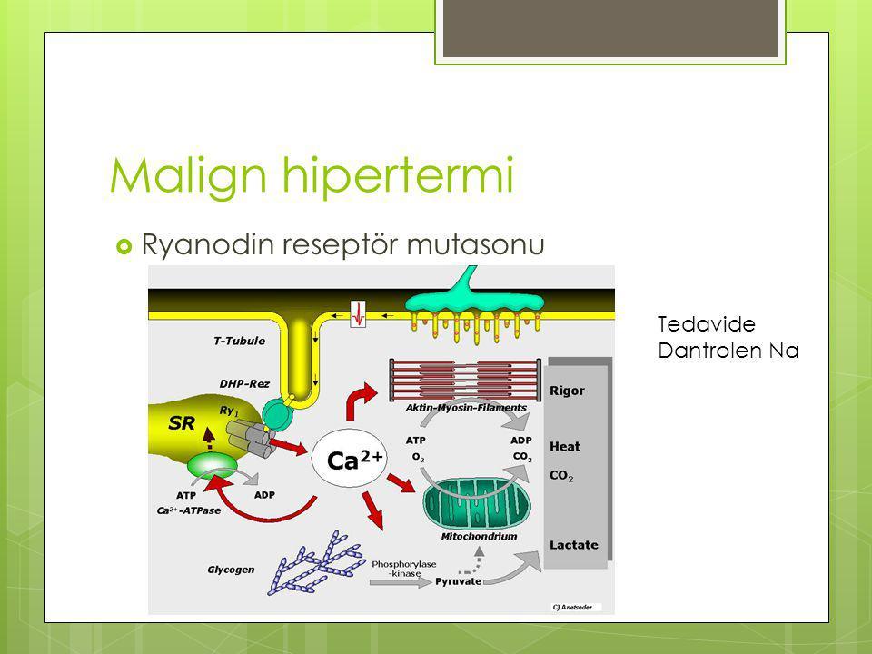 Malign hipertermi Ryanodin reseptör mutasonu Tedavide Dantrolen Na