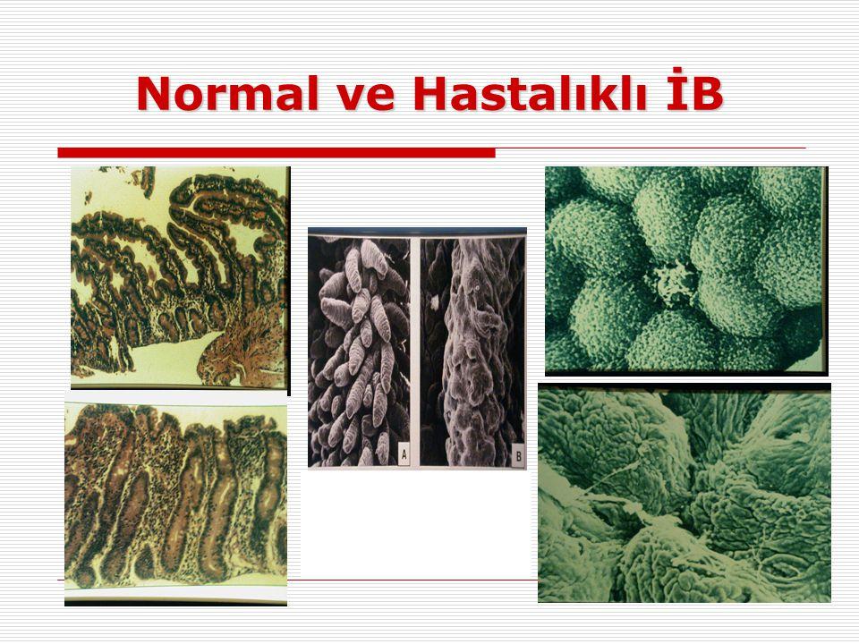 Normal ve Hastalıklı İB