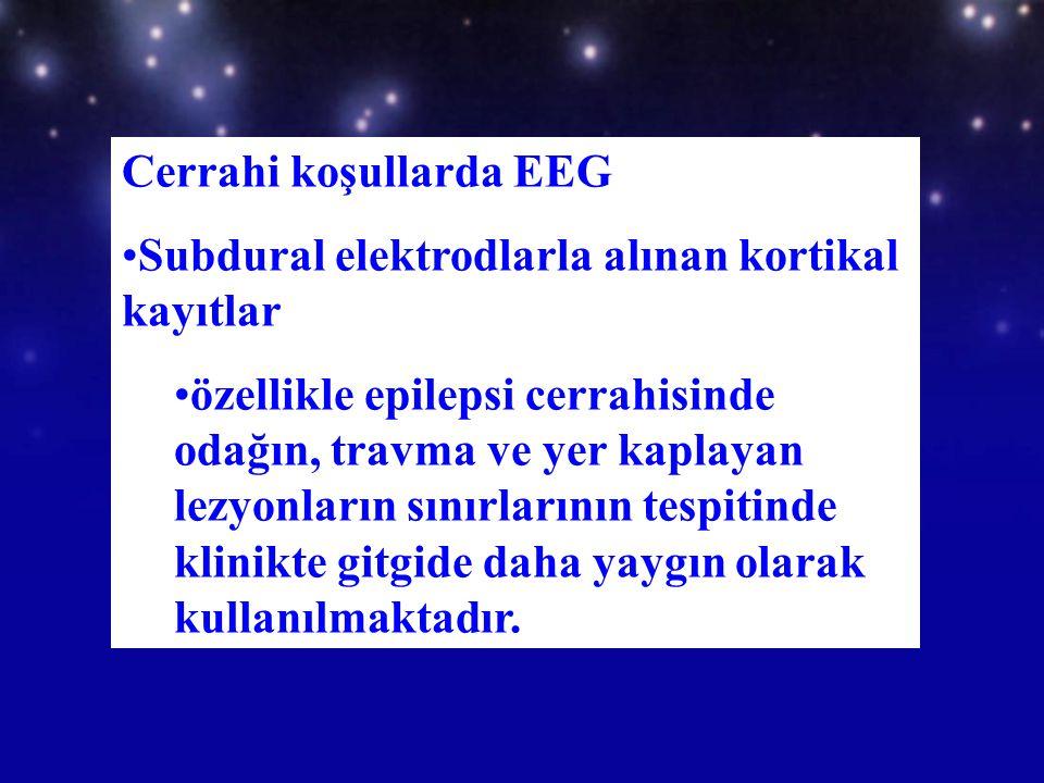 Cerrahi koşullarda EEG