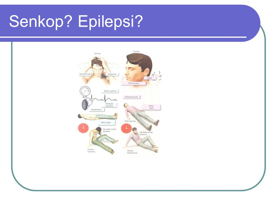 Senkop Epilepsi