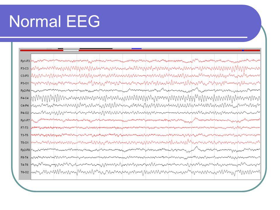 Normal EEG