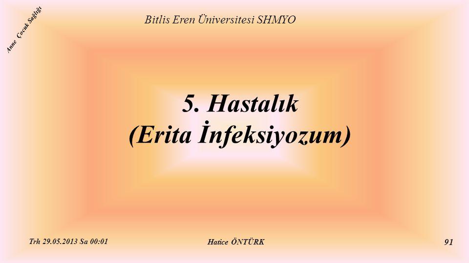 5. Hastalık (Erita İnfeksiyozum)