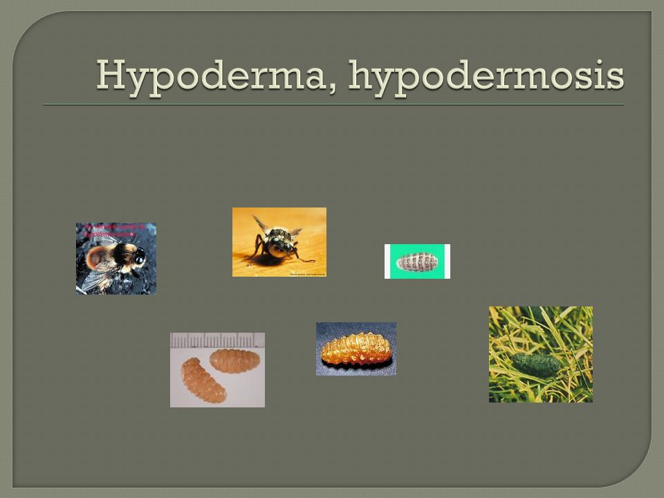 Hypoderma, hypodermosis