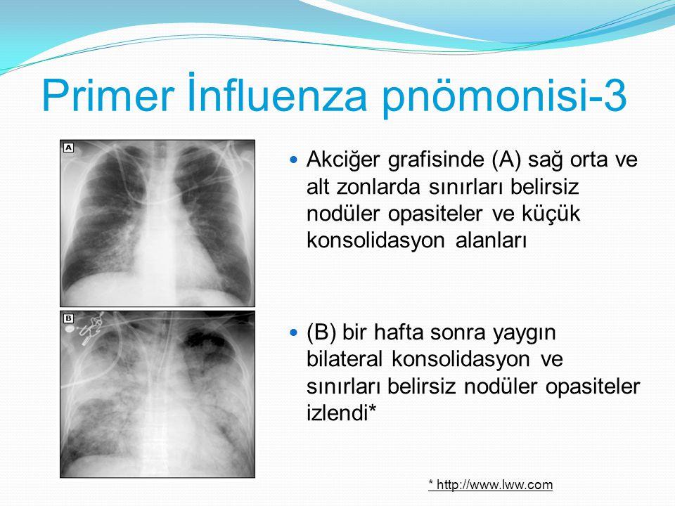 Primer İnfluenza pnömonisi-3