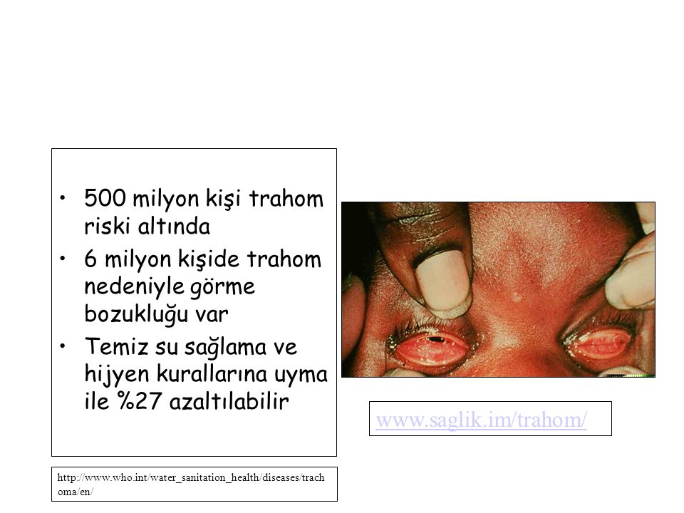 500 milyon kişi trahom riski altında