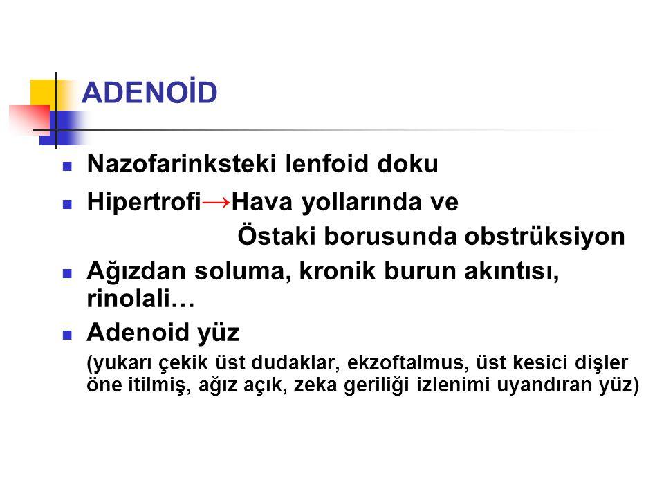 ADENOİD Nazofarinksteki lenfoid doku Hipertrofi→Hava yollarında ve