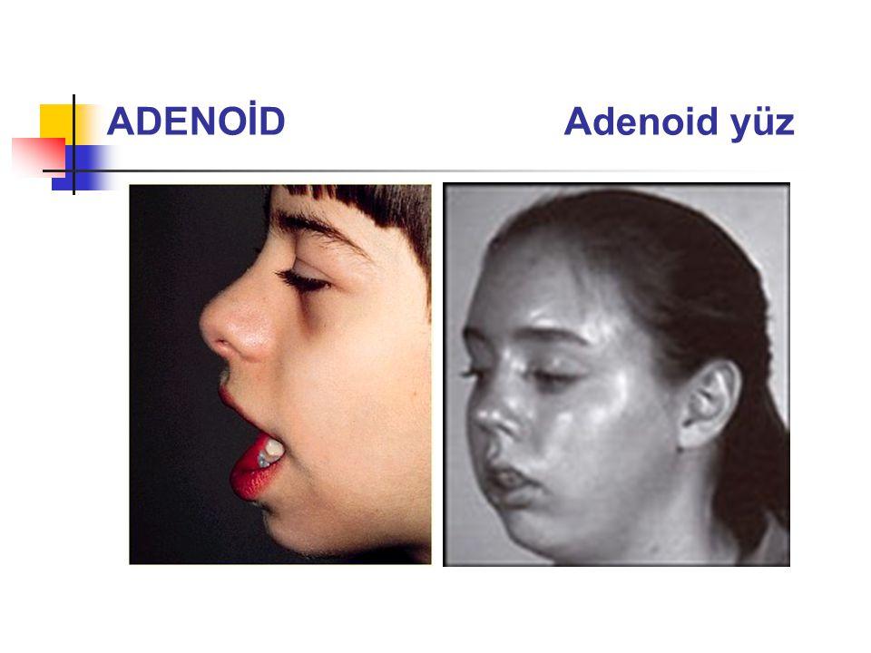ADENOİD Adenoid yüz yüzü anlamsız, ağzı açıktır ve nazal konuşması vardır ve fonetiği bozuk.