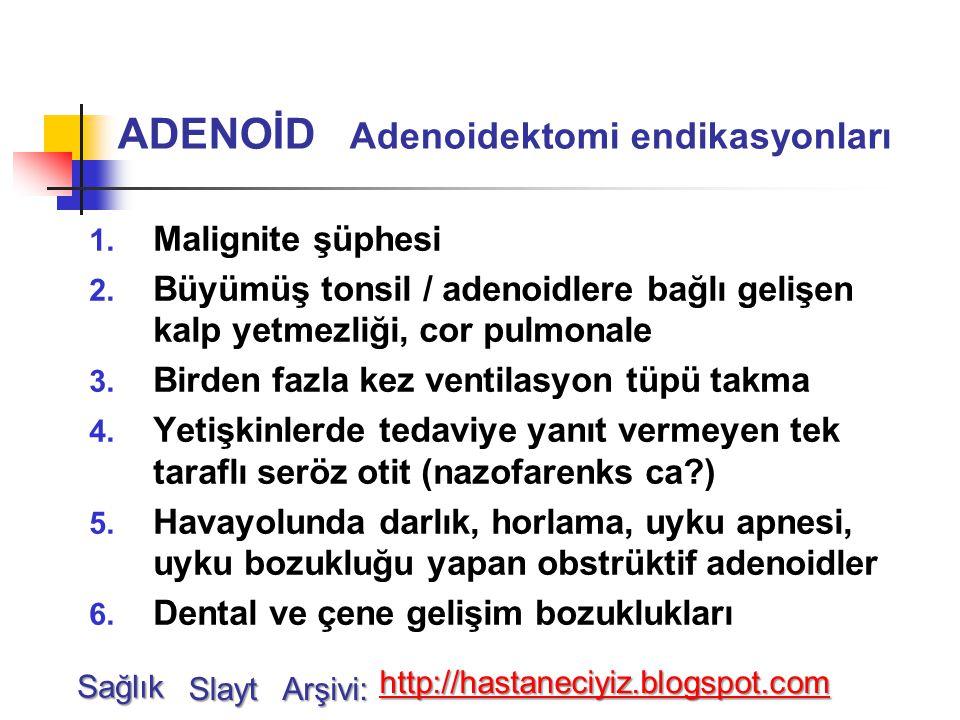 ADENOİD Adenoidektomi endikasyonları