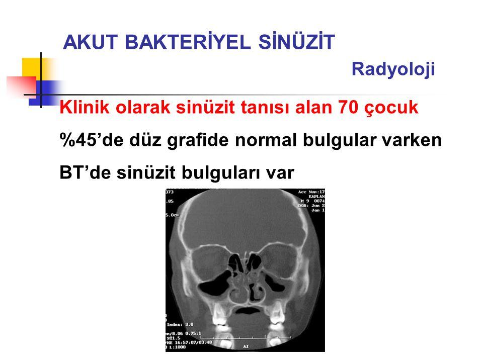 AKUT BAKTERİYEL SİNÜZİT Radyoloji