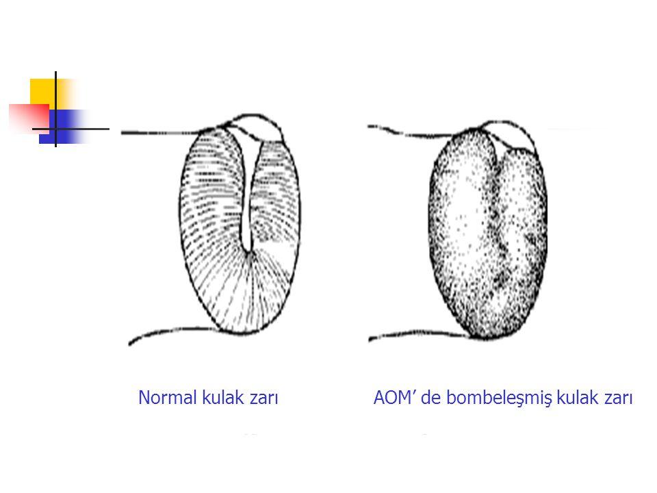Normal kulak zarı AOM' de bombeleşmiş kulak zarı