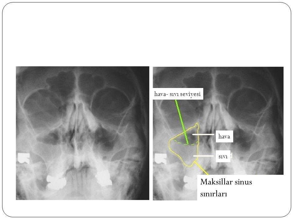Maksillar sinus sınırları