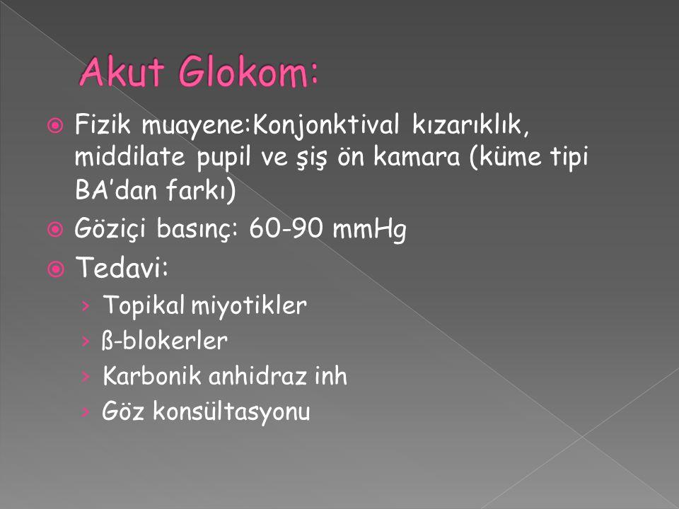 Akut Glokom: Fizik muayene:Konjonktival kızarıklık, middilate pupil ve şiş ön kamara (küme tipi BA'dan farkı)