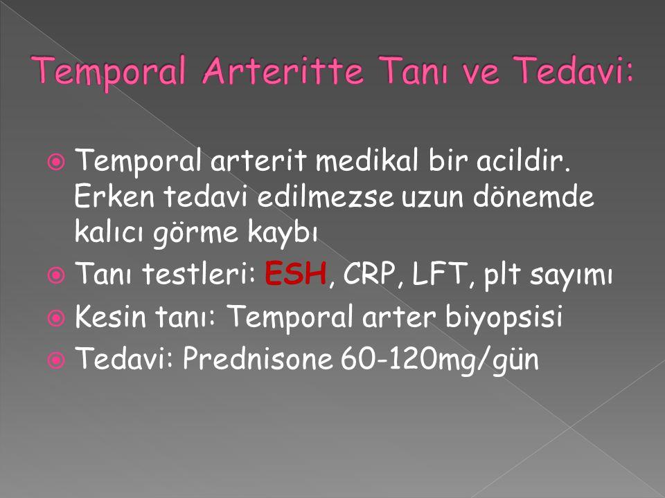Temporal Arteritte Tanı ve Tedavi: