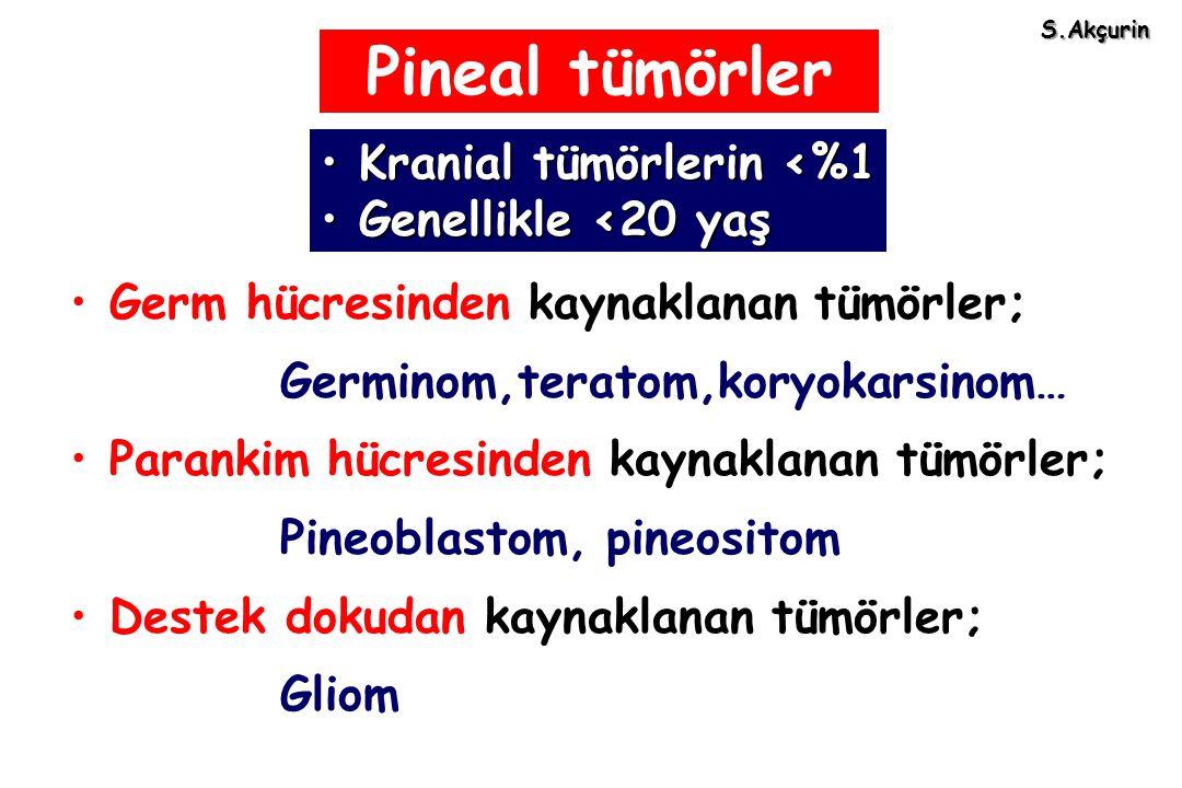 Pineal tümörler Kranial tümörlerin <%1 Genellikle <20 yaş