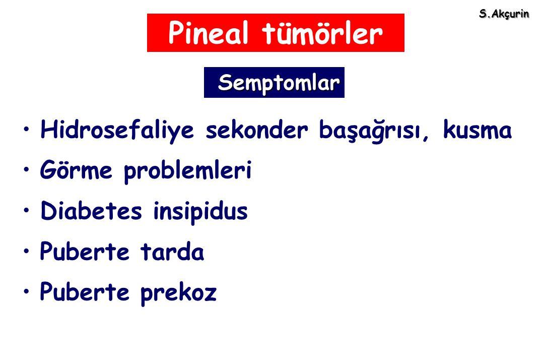 Pineal tümörler Hidrosefaliye sekonder başağrısı, kusma