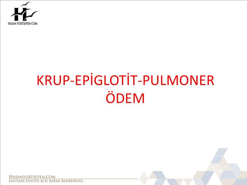 KRUP-EPİGLOTİT-PULMONER ÖDEM