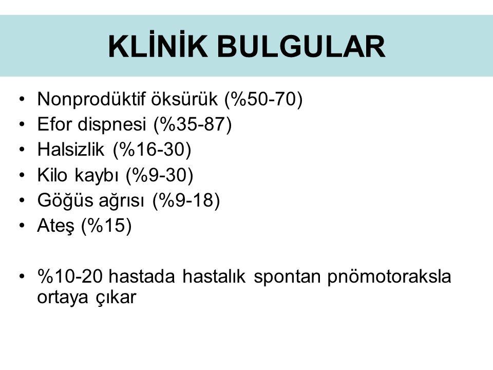 KLİNİK BULGULAR Nonprodüktif öksürük (%50-70) Efor dispnesi (%35-87)