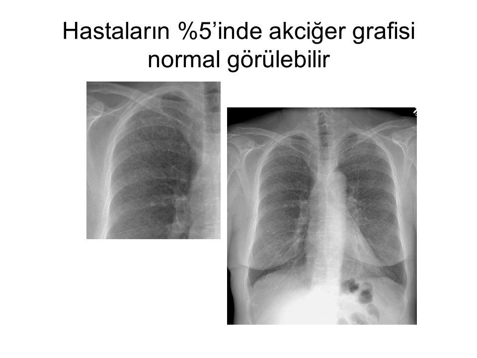 Hastaların %5'inde akciğer grafisi normal görülebilir