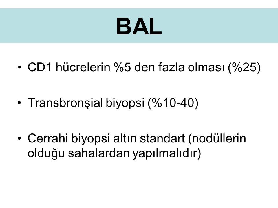 BAL CD1 hücrelerin %5 den fazla olması (%25)