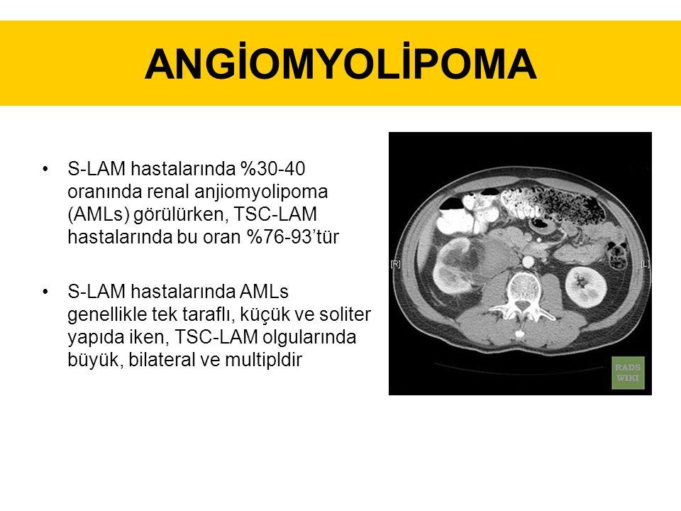 ANGİOMYOLİPOMA S-LAM hastalarında %30-40 oranında renal anjiomyolipoma (AMLs) görülürken, TSC-LAM hastalarında bu oran %76-93'tür.