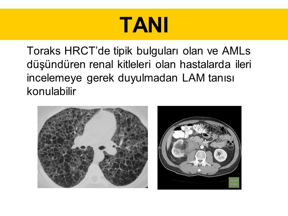 TANI Toraks HRCT'de tipik bulguları olan ve AMLs düşündüren renal kitleleri olan hastalarda ileri incelemeye gerek duyulmadan LAM tanısı konulabilir.