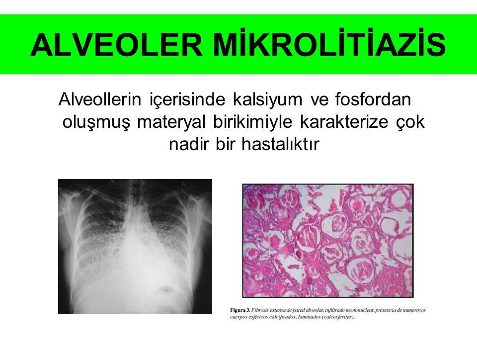 ALVEOLER MİKROLİTİAZİS
