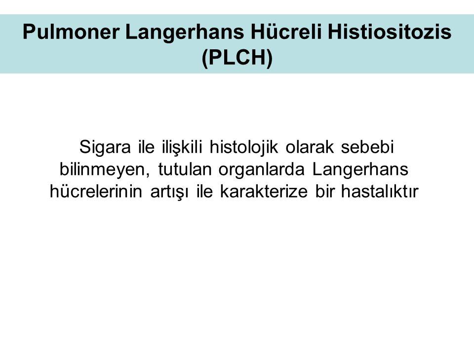 Pulmoner Langerhans Hücreli Histiositozis (PLCH)